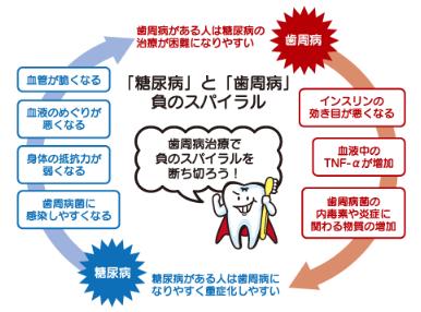 歯周病と糖尿病の負のスパイラル